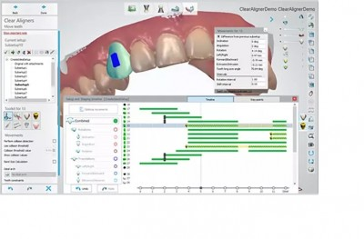 Dental System Scan Only Stand-Alone